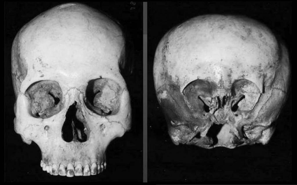 1 4 4 human-starchild skull