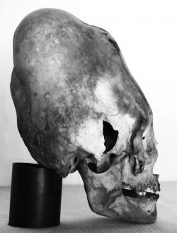 1 4 3 elongated skull